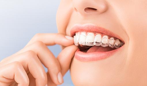 マウスピース型カスタムメイド矯正歯科装置を用いた矯正治療